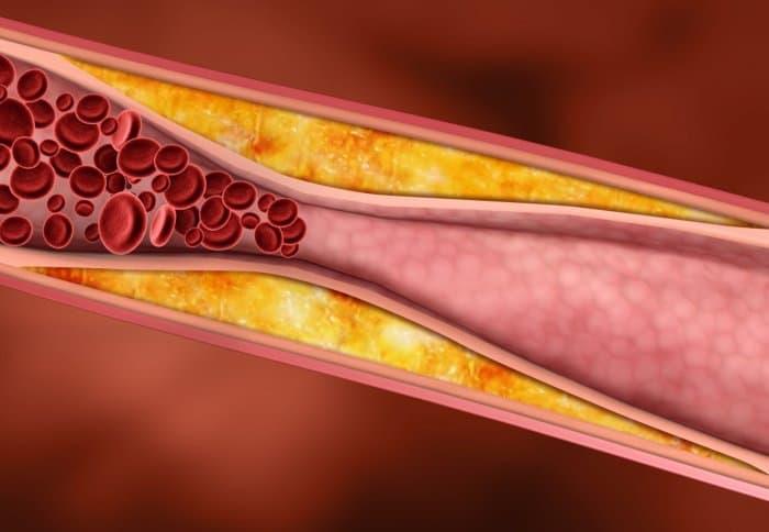 hiperlipidemija